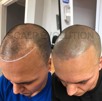 Can Scalp Micropigmentation Conceal Hair Transplant Scars?