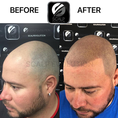 What Is the Recovery Time After Scalp Micropigmentation?