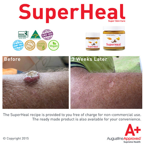 SuperHeal Before and After Lump on Arm Natural Treatment