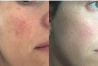 Treating Rosacea with LED