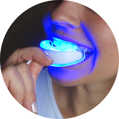 IVISMILE Teeth Whitening Kit,merchantvikings