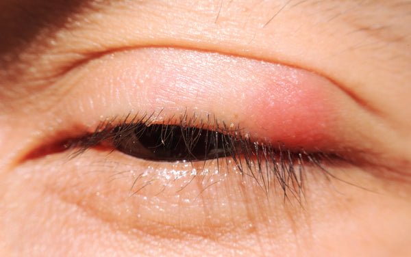 blepharitis - How to Clean Eyelash Extensions