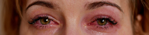how to combat allergy to eyelash extension glue - symptoms