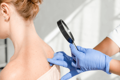 dermatologist checking sunspots and discoloration on young woman