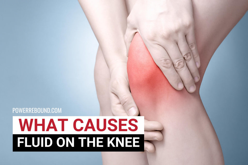 What Causes Fluid on the Knee?