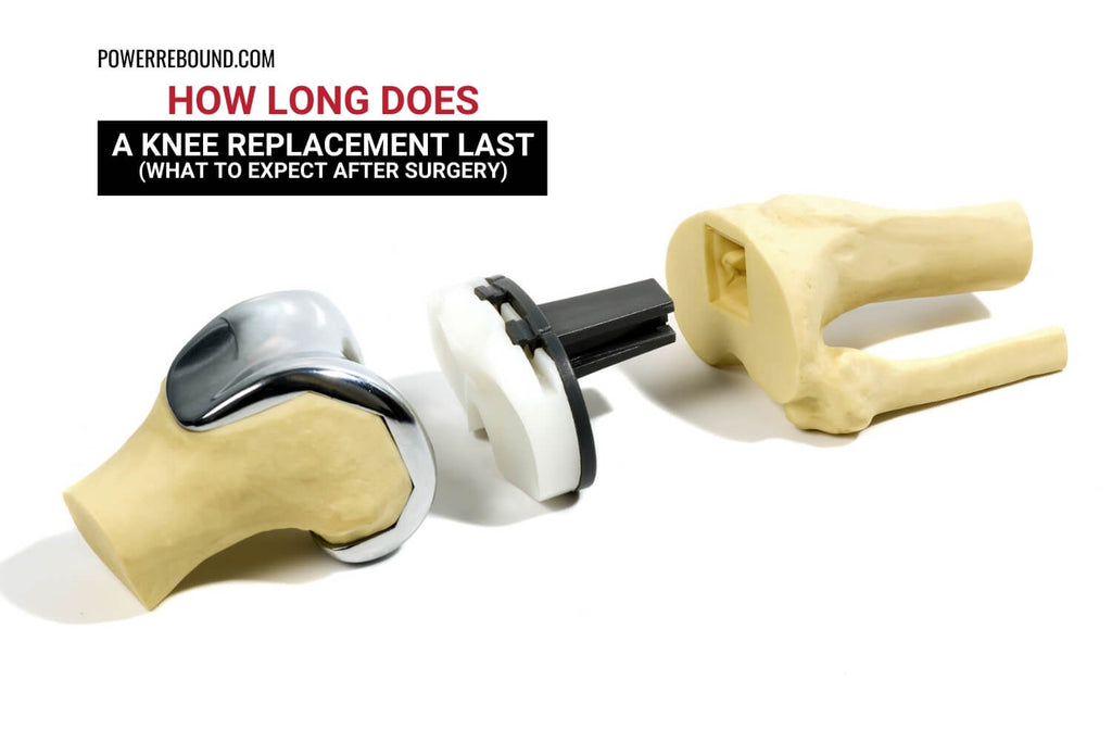 How Long Does a Knee Replacement Last? What to Expect after Surgery