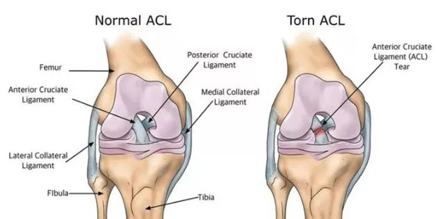What-Does-An-ACL-Injury-Look-Like