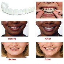 Load image into Gallery viewer, Beautiful Comfort Fit Flex Cosmetic Teeth Braces Denture Smile
