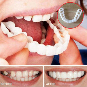 Beautiful Comfort Fit Flex Cosmetic Teeth Braces Denture Smile