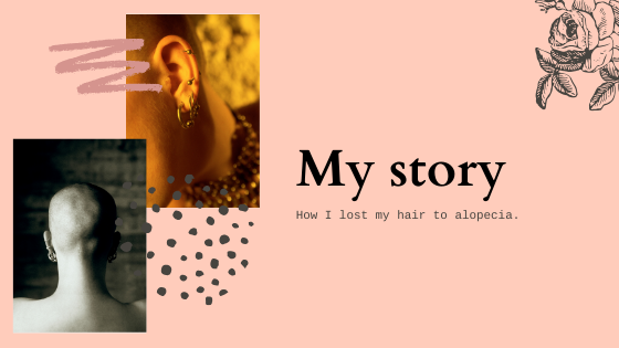 My story - How I lost my hair to alopecia ...