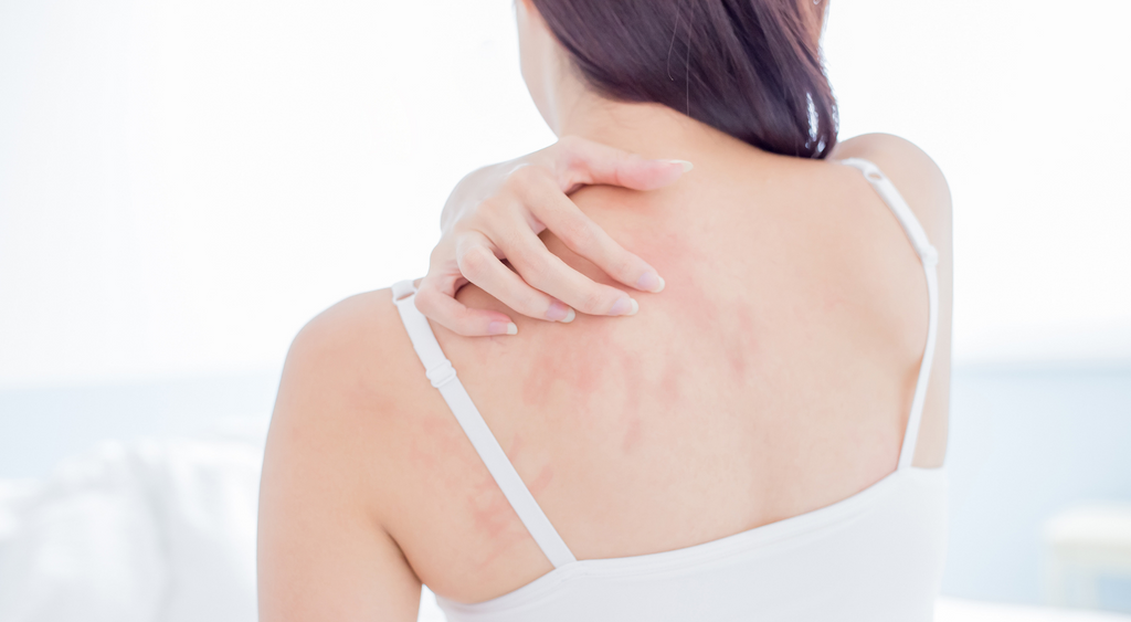4 COMMON INGREDIENTS TO AVOID IF YOU HAVE ECZEMA