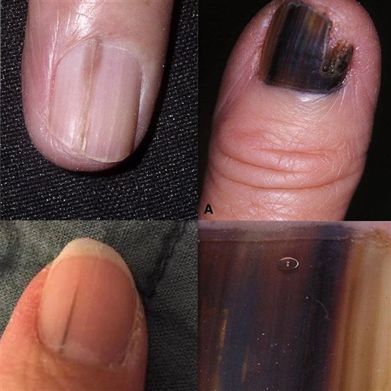 WHAT DOES NAIL MELANOMA LOOK LIKE?
