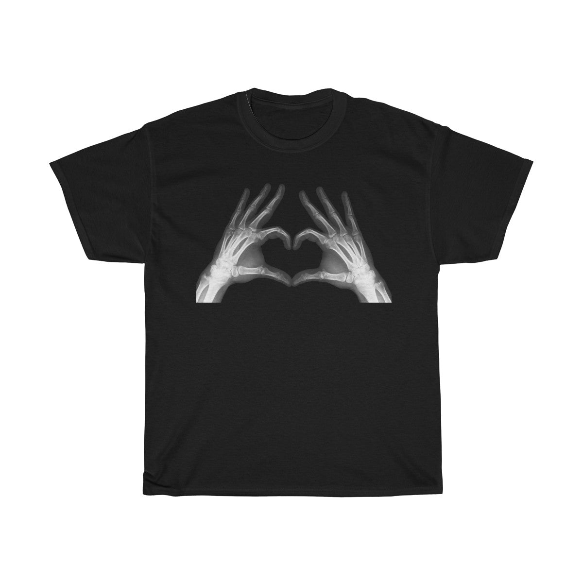 Heart Shaped Hands of Love - Xray Hands Men's T-Shirt - FREE shipping in US