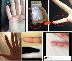 It's an Epidemic! Bent Smartphone Pinky