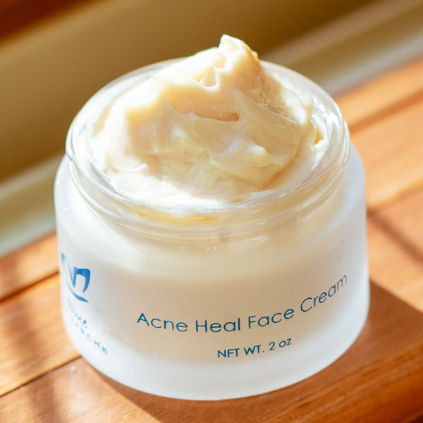 Acne Heal Face Cream