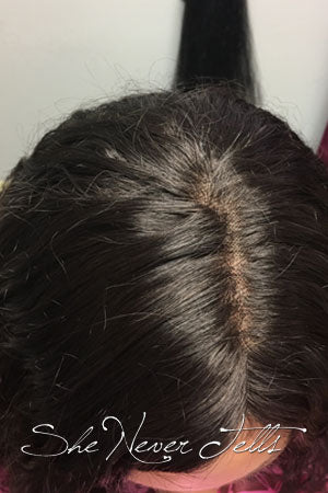 Trichotillomania After
