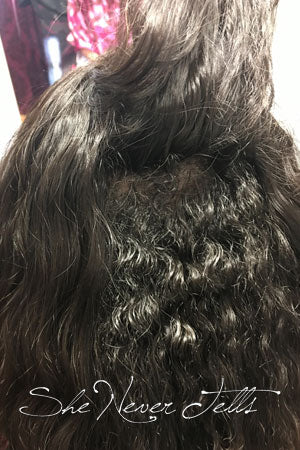 Trichotillomania Topper Blended with Natural Hair
