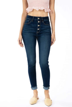 High Rise Button Fly Ankle Skinny Jeans