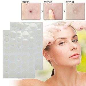 Skin Tag Acne Remover Patch (36pcs / Set)