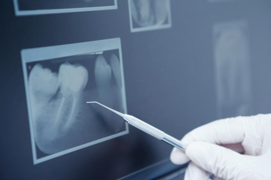 Dental X-Rays: The Facts You Need To Know