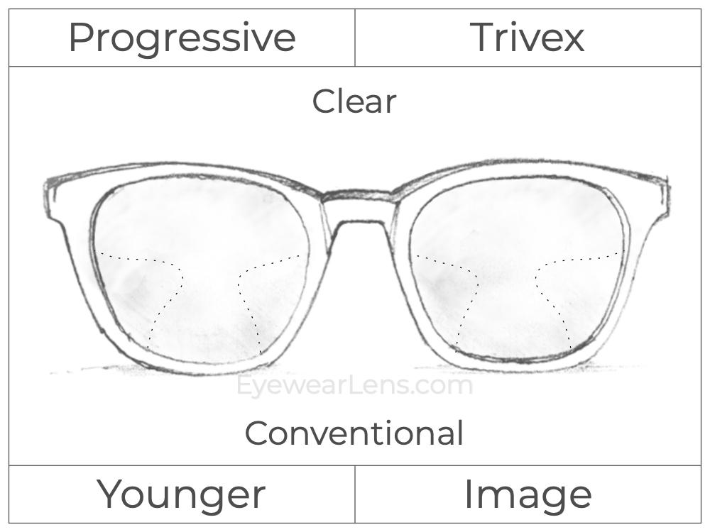 Progressive - Younger - Image - Trivex - Clear