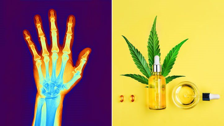 Should You Take CBD for Arthritis Pain? A New Guide Aims to Help You Decide