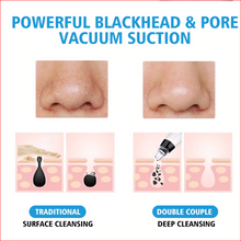 Load image into Gallery viewer, Blackhead Pore Remover