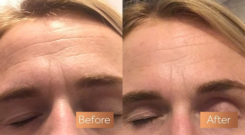 does Absolute Collagen work?