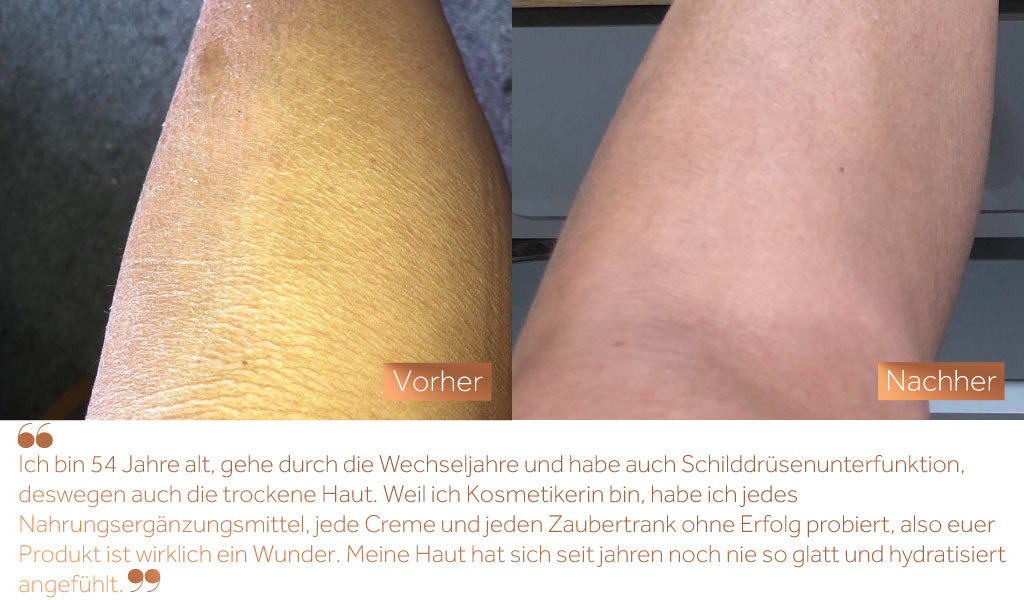 Before and after image of a woman's leg with dry skin in the before image and improved skin texture in the after image as a result of taking Absolute Collagen
