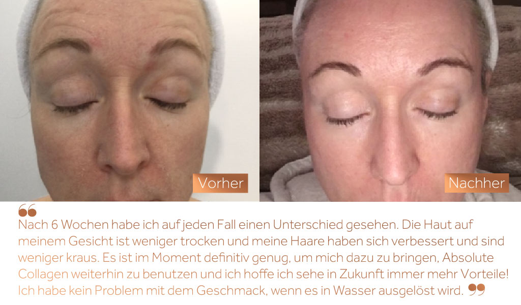 Before and after image of a woman's face showing improvements to the skin after using Absolute Collagen