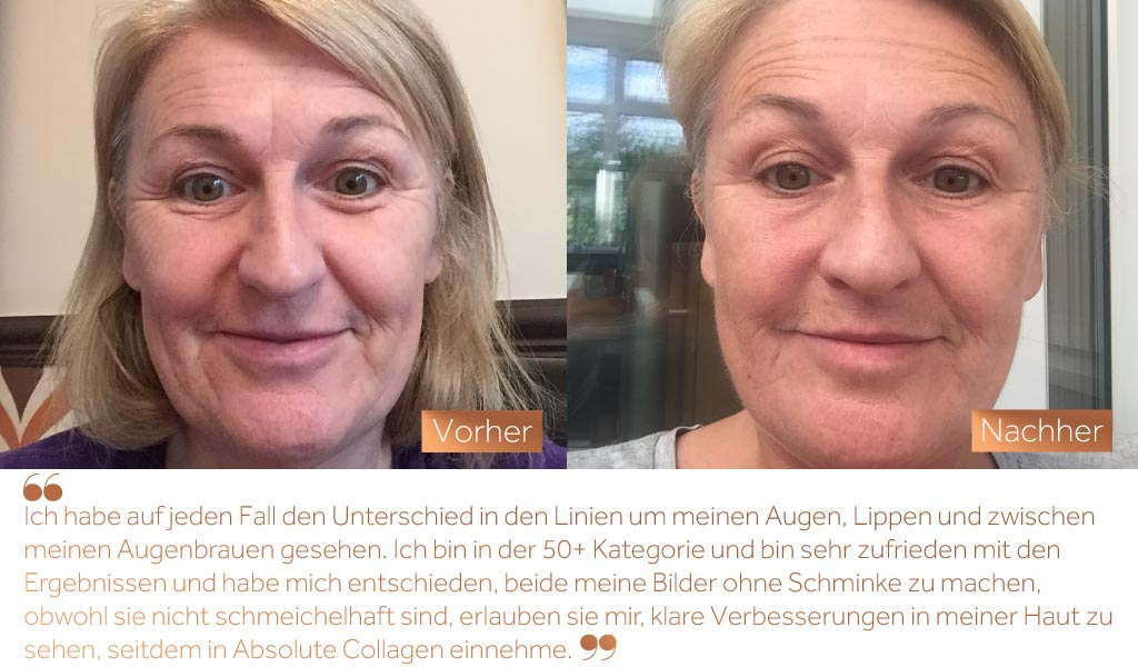 Before and after photos showing the improved skin smoothness of a white woman's face after taking Absolute Collagen
