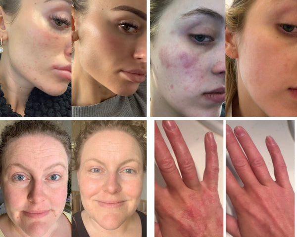 Before and after photos of people using Biologi Serum