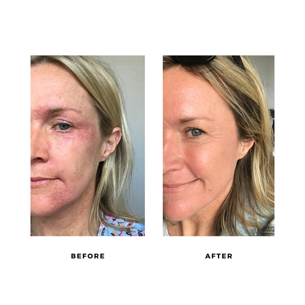 Before and after photos. Skin cleared up after removing synthetic fragrance from beauty and household products.