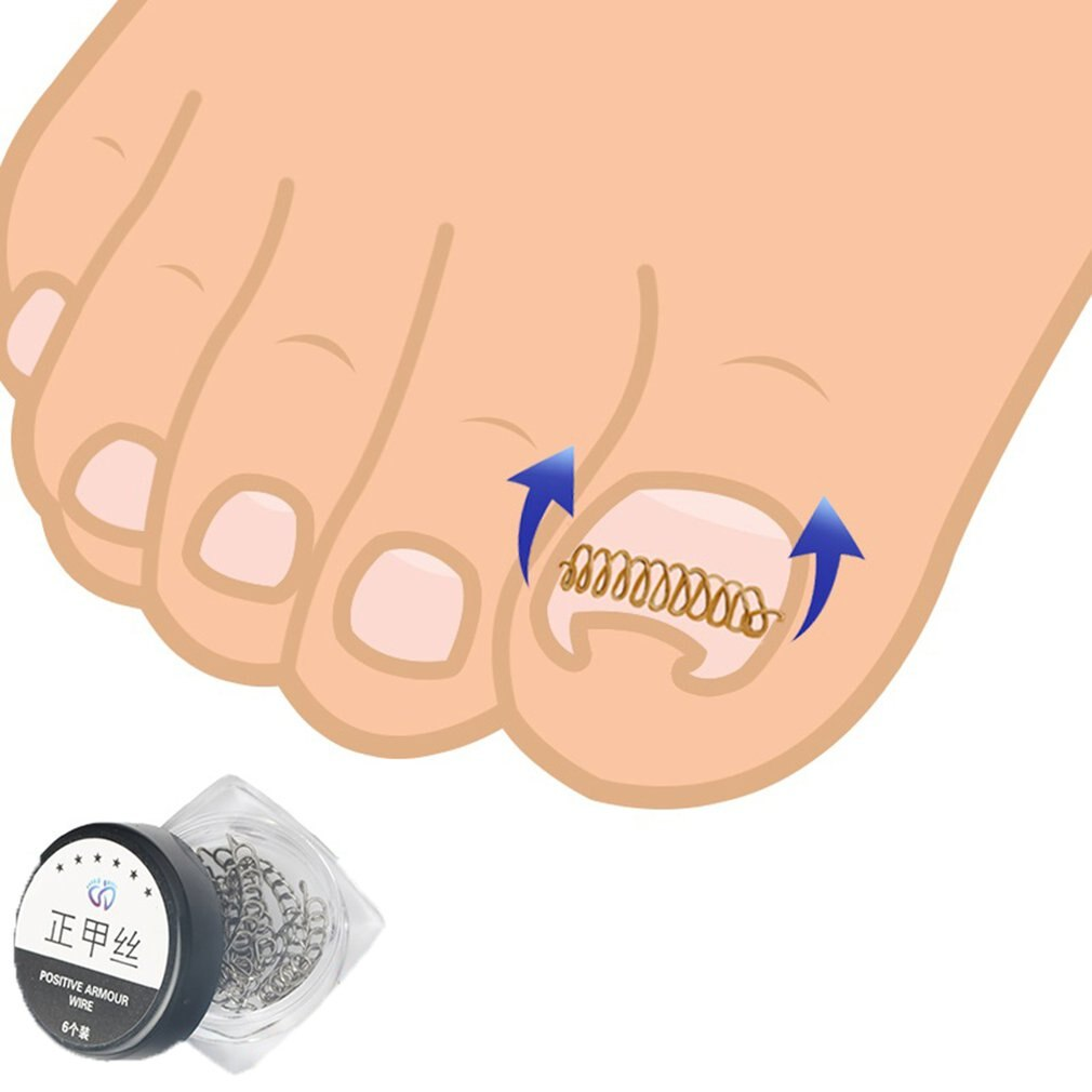 10/12/24pcs Correction File Elastic Patch Corrector Treatment Tools Toe Nail Ingrown Correction Sticker Patch - ebowsos