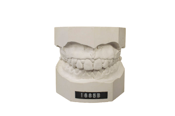 Make an Impression!  Dental Molds Set of 3