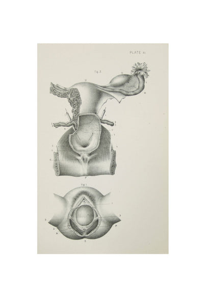 Medical Anatomical Prints of Female Pelvic Organs - 1880's Original Prints