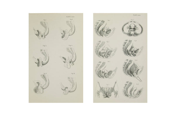 Medical Anatomical Prints of Female Pelvic Organs - 1880's Medical Drawings