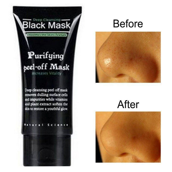 Deep Cleaning Blackhead Pimple Mask | Versful