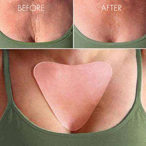 Image of Reusable Anti Wrinkle Chest Pad