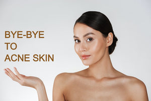 Say Bye-bye to Acnes. Hello Flawless Skin!