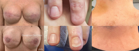 Paramedical Before and After