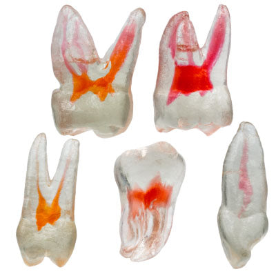 TrueTooth 3D Printed Teeth