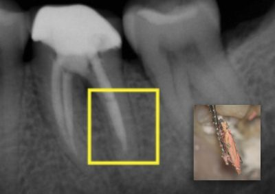Obturation: Sealing the Root Canal System