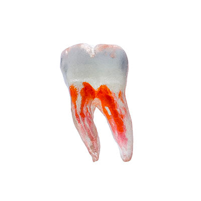 TrueTooth Oversized Education Model - Molar