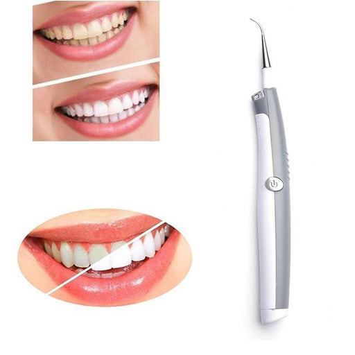 Electric Tooth Stain Eraser Plaque Remover Dental Tool Teeth Whitening Dental - GEEKMANN✓