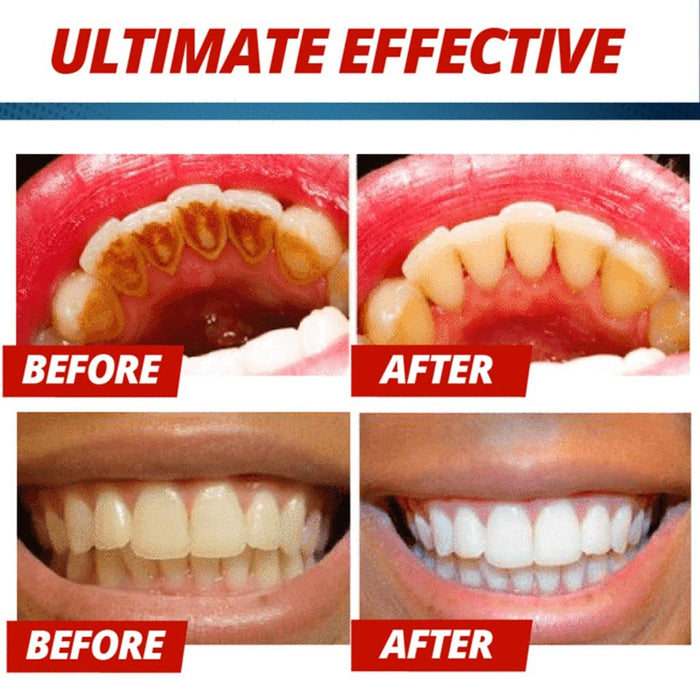 Magical Soda Whitening Toothpaste Teeth Whitening Cleaning - GEEKMANN✓