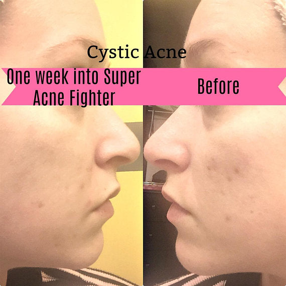 Super Acne Fighter / Organic Acne Treatment / Acne - BelCorner