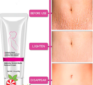 Maternity Stretch Marks Removal Cream