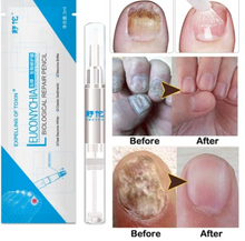 Load image into Gallery viewer, Onychosolve™ Advanced Fungal Nail Repair Pen - HOT