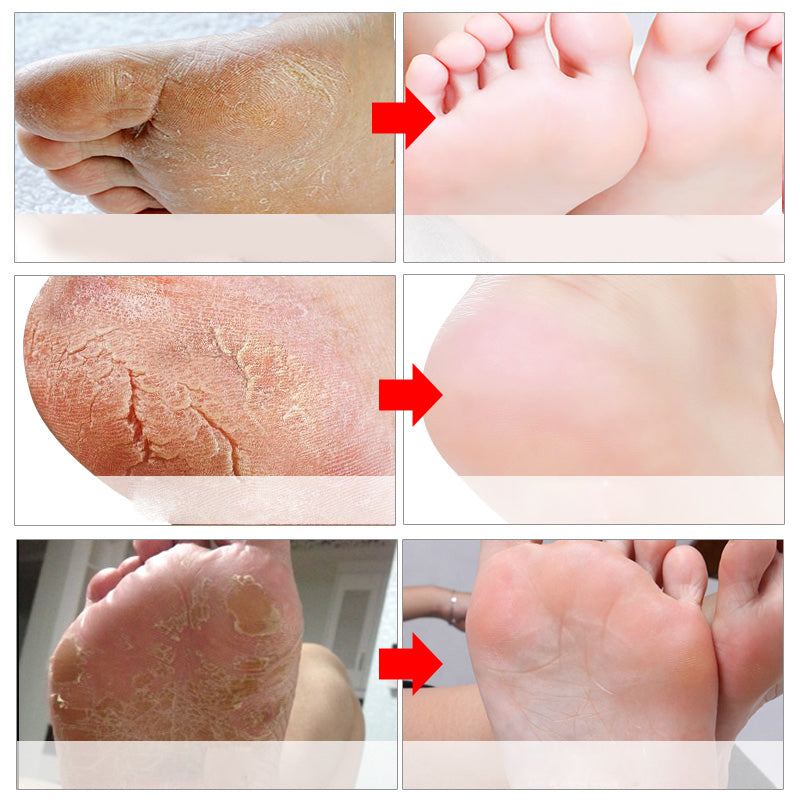 6Pcs 3 Pair Exfoliating Foot Mask for Legs Pedicure Socks Exfoliating Foot Peeling Mask